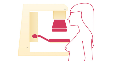 Which is the Right Mammogram for You?