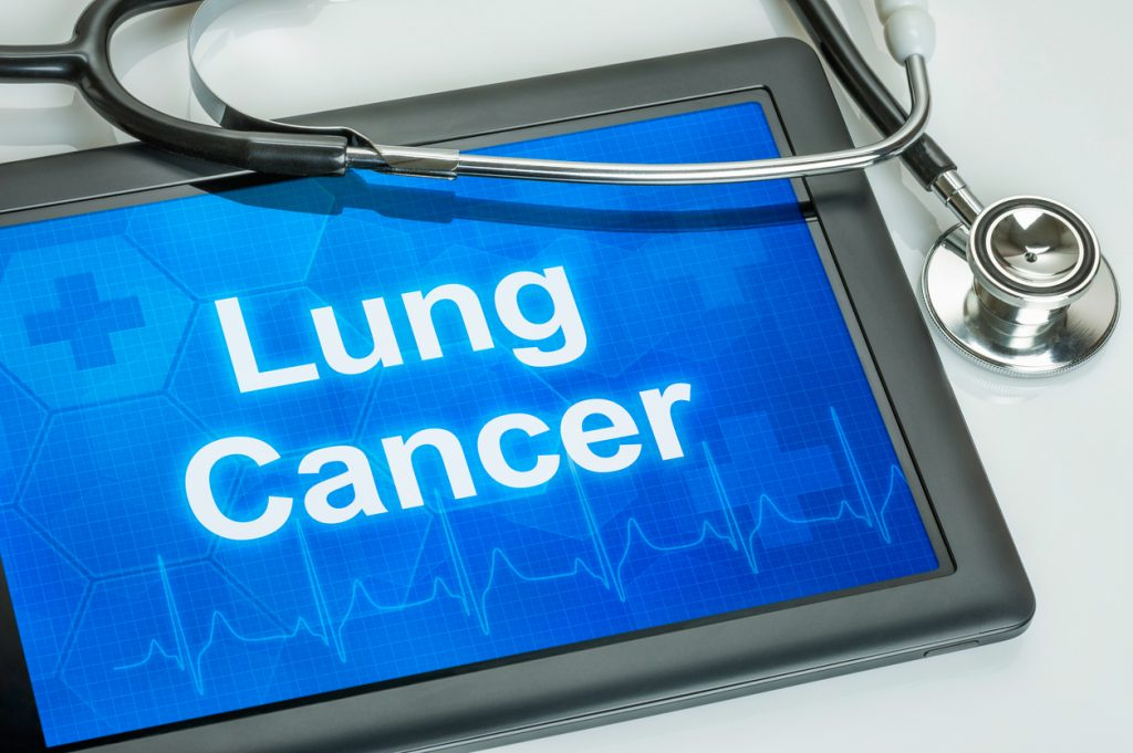 Are You a Candidate for Lung Cancer Screening?